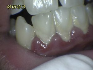 Gum Disease/ Periodontal Disease