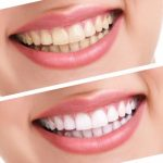 Teeth Whitening- Teeth Bleaching
