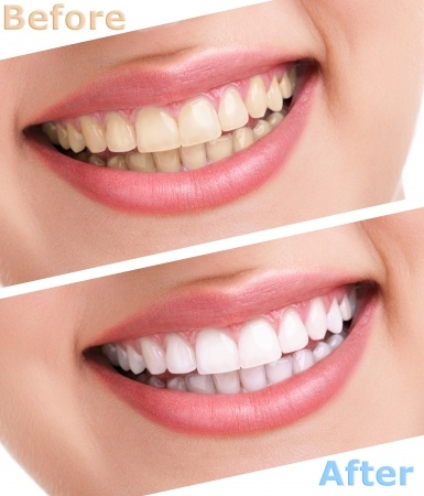 Teeth Whitening: What you should know