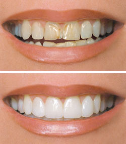 Dental Veneers Cudahy CA