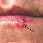 Herpes or cold sore
