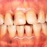 Discolored Teeth Due To Smoking