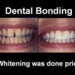 Dental Teeth Bonding